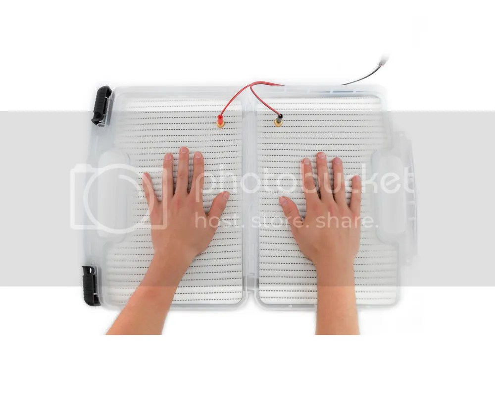 Excessive Hands Sweating Treatment Through Iontophoresis