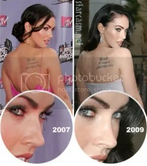 plastic surgery gone wrong articles