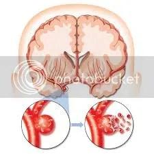 Pengobatan Penyakit Stroke, Terapi Penyakit Stroke, Obat Herbal Penyakit Stroke, Obat Alami Penyakit Stroke