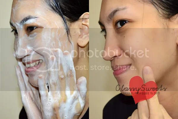 Ciracle Blackhead Soap: Your Key To A Blackhead-Free Face
