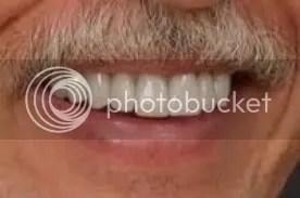 pain free dentistry wellington