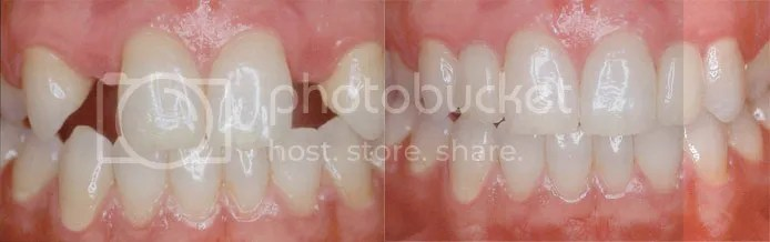 dental implant nashville tennessee