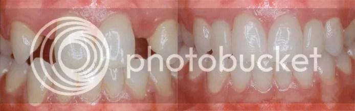 dental implant nashville tennessee
