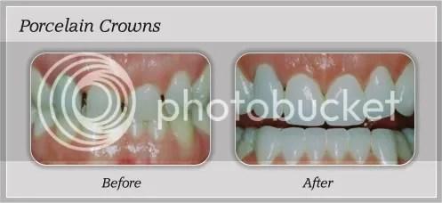 pain free dentistry boca raton