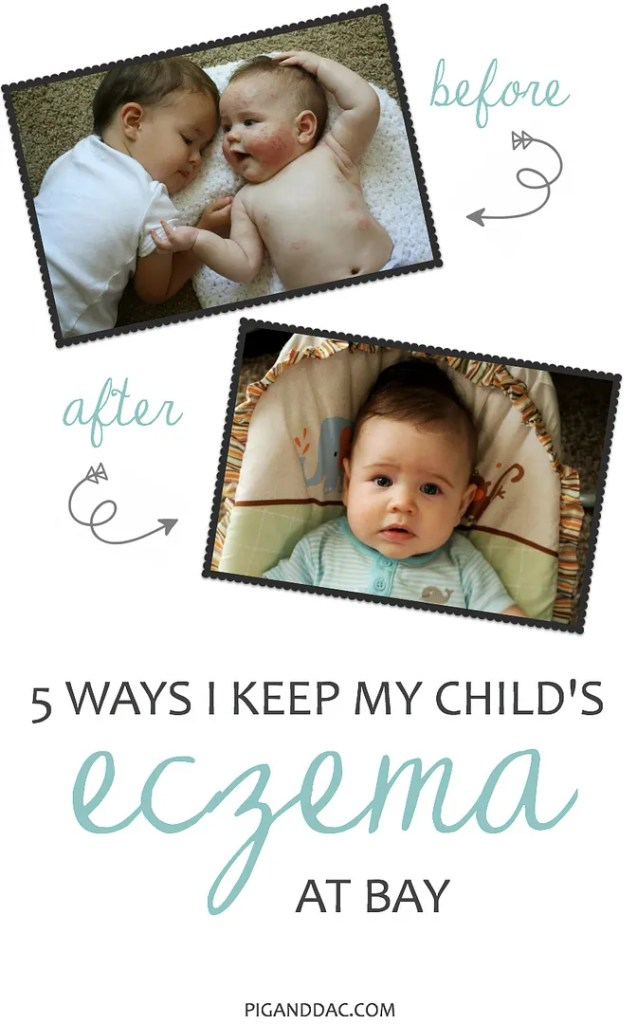 How I keep my child's eczema at bay, especially during these hot, dry summer months