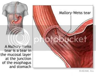 Điều trị hội chứng Mallory-Weiss