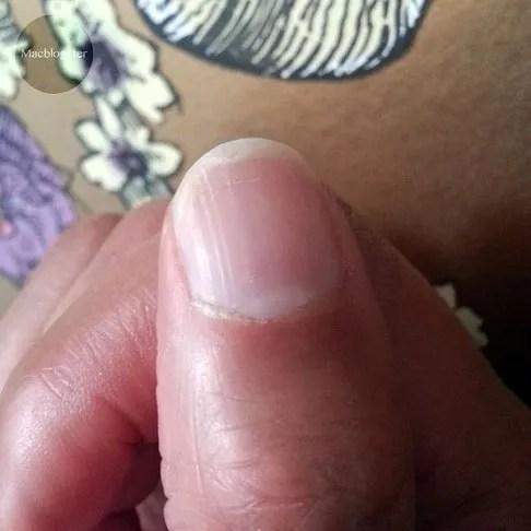 gespleten nagels photo gespleten-nagels_zpsgmaz0bfe.jpg