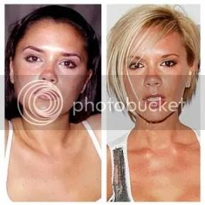 plastic surgery japan