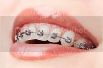 tooth whitening royal palm