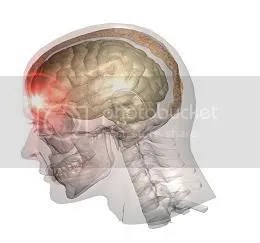 Poškodba možganov