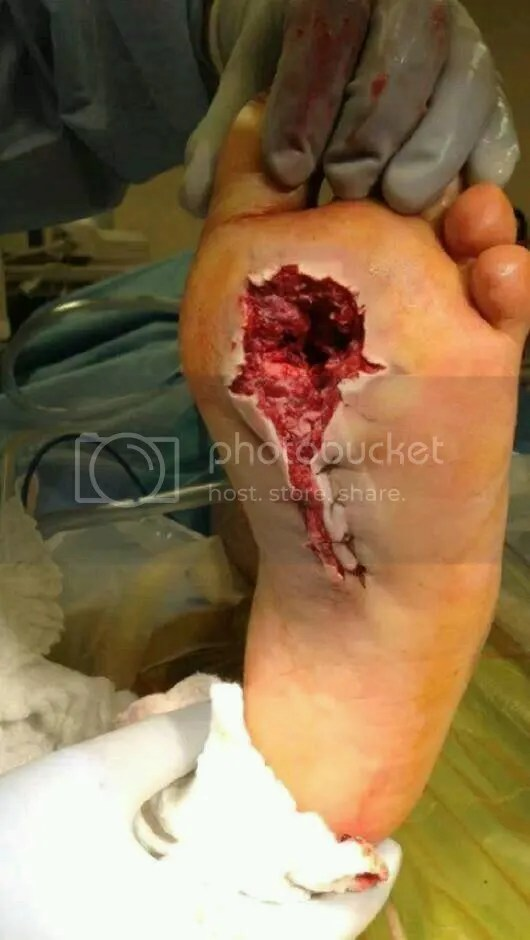 Shotgun foot wound