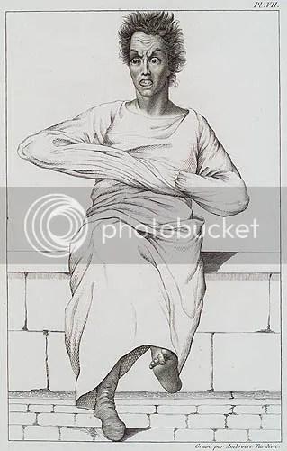 Litografia de Ambroise Tardieu para E. Esquirol,Des maladies mentales, Atlas, Paris, 1838