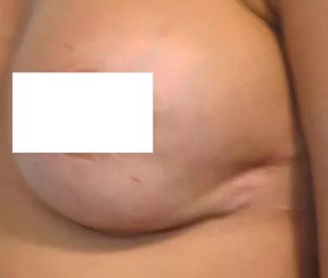 Danielle Lloyds Scars After Boob Job