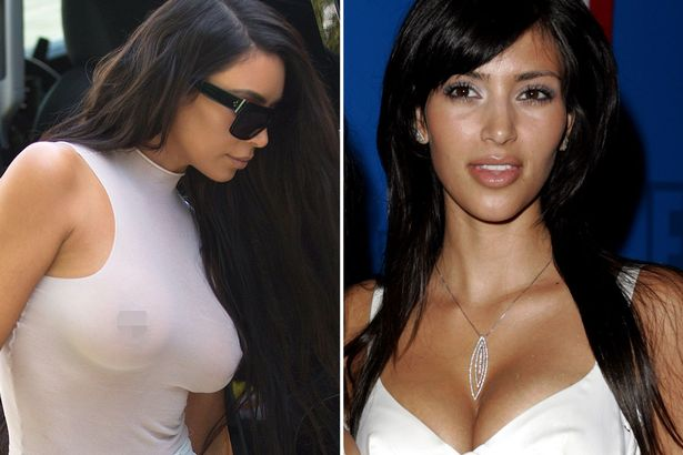 Kim Kardashian Before And After Boob Jobs