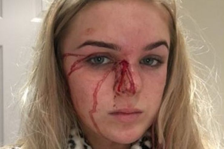 , Brave Teen stripped naked and beaten by boyfriend