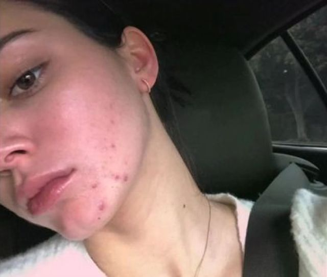 Kendall Has Come Under Huge Criticism After Her Raw Announcement Turned Out To Be An Advert For Spot Cream Image Proactiv Backgrid