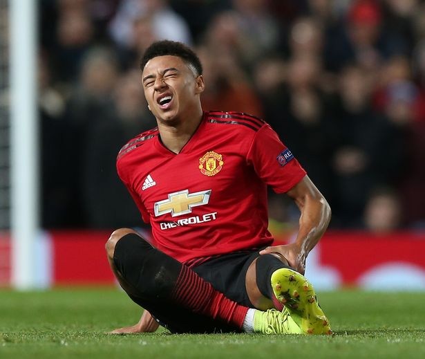 Manchester United injury update: Anthony Martial and Jesse Lingard could miss next Champions League match 0 Manchester United v Paris Saint Germain UEFA Champions League Round of 16 First Leg