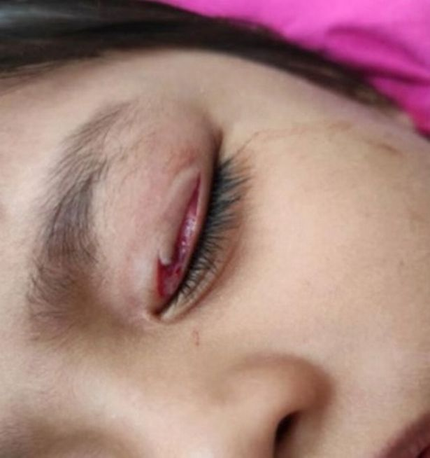 A close-up of the eyelid injury