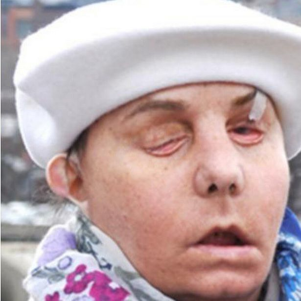 Carmen Tarleton's face following a chemical attack by her abusive ex