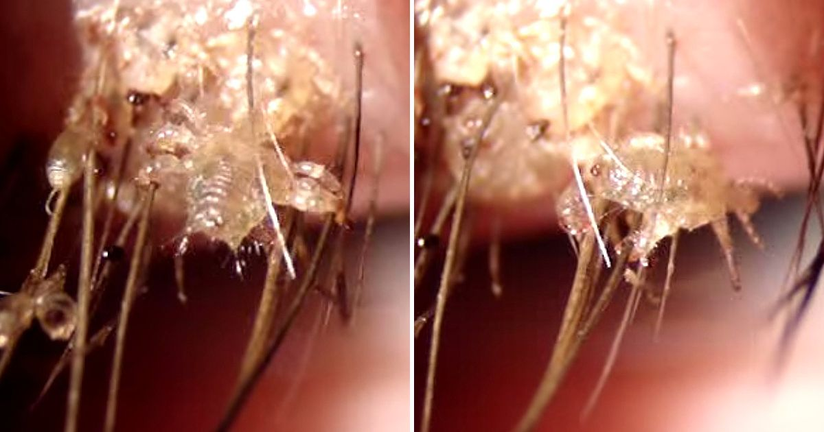 This Horrifying Close Up Video Of Eyelash Lice Will Give