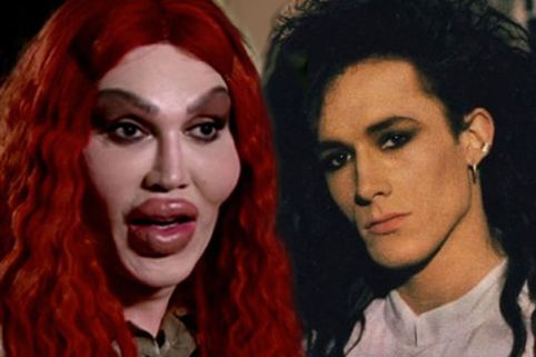 Pete Burns1
