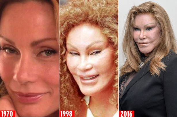 Image result for Jocelyn Wildenstein before and after plastic surgery