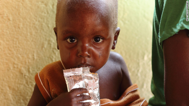 A malnourished child on March 21 at a hospital in Bukina Faso.