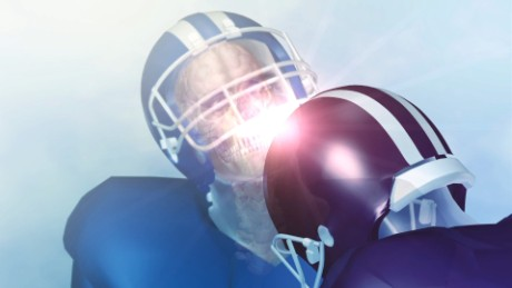 5 things to know about CTE