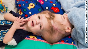 New life, apart: Rare surgery to separate brothers conjoined at head