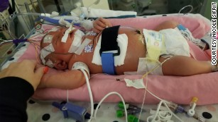 At nearly 3 weeks old, Mariana was fighting for her life.