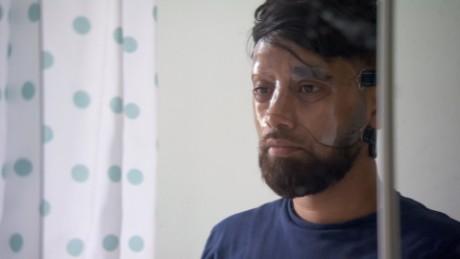 Vittima di attacco acido: 'Sembra che il tuo volto sta sciogliendo'