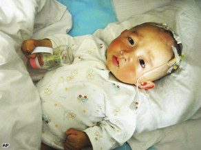 A baby suffering from kidney stones receives treatment at a hospital in Lanzhou, northwestern China's Gansu province.