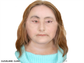 This image projects what Connie Culp, 46, may look like two years after the face transplant.