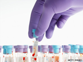 For toxicology screenings, blood samples are drawn from the leg and heart, as drugs can circulate around the body.