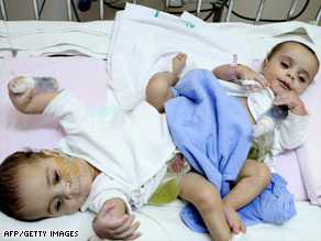Conjoined twins Hassan, left, and Mahmud rest the day before separation surgery in Riyadh, Saudi Arabia.