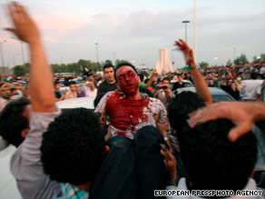 A protester injured during Monday's demonstration in Tehran is carried to a hospital.