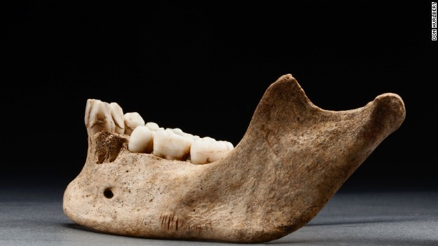 """Historians refer to this dark period of the colony as """"the starving time,"""" a period during which almost 80% of the colonists died. This 2012 photo shows several sharp cuts to the bottom of a mandible."""