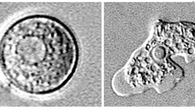 Naegleria fowleri enters the body through the nose and travels to the brain.