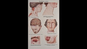 A medical illustration depicts different cases of syphilis.