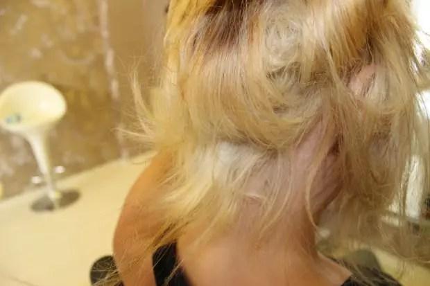 saç yanmasına özel bakım önerileri