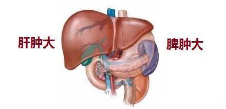 盤點肝硬化患者易發貧血的原因︱補血應吃這三種乾貨 - 每日頭條