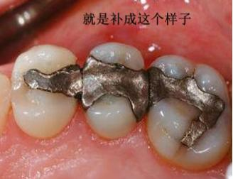 為什麼補牙後牙齒變黑了? - 每日頭條