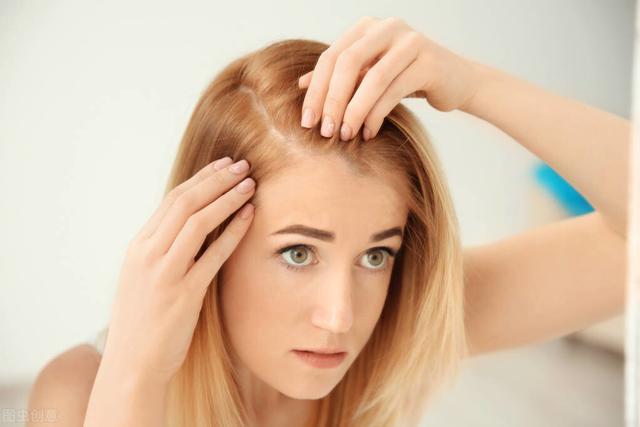 頭髮油膩脫髮怎麼治療 油膩脫髮嚴重影響顏值和氣質 - 每日頭條