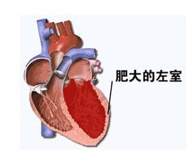 左心室的心肌為什麼會肥厚? - 每日頭條