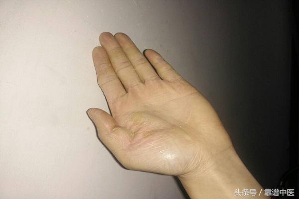 手脫皮是什麼原因 手脫皮最佳治療方法 - 每日頭條