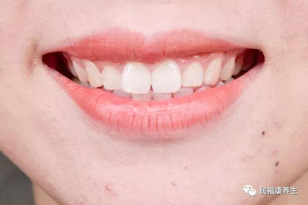 嘴唇乾裂脫皮怎麼辦 一招恢復水潤雙唇 - 每日頭條