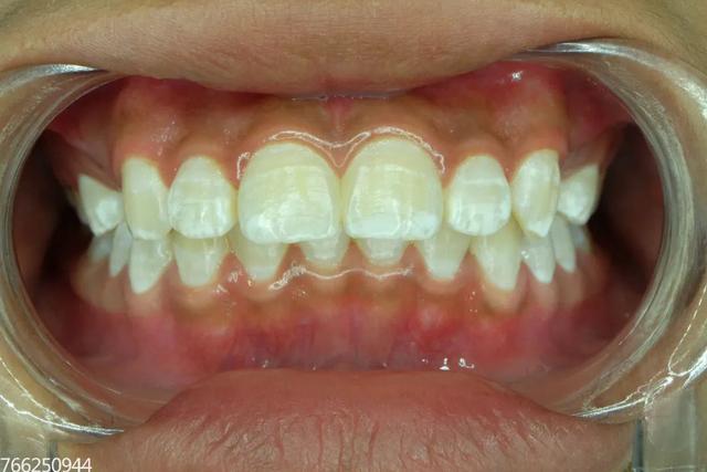 大連齒醫生口腔科普 那些潔白的牙齒 要怎樣才能擁有 - 每日頭條