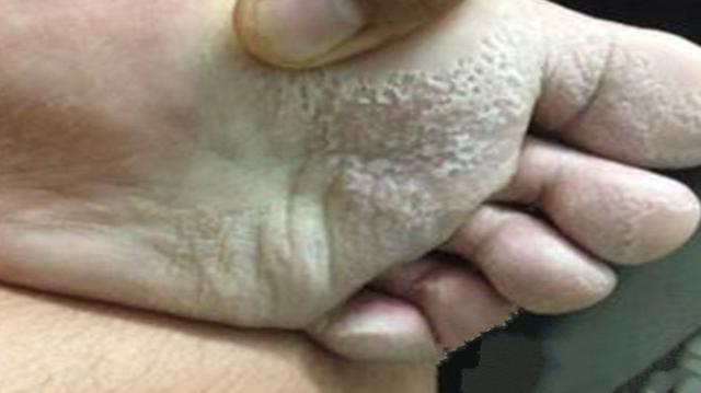 夏天腳汗多怎麼辦?幾大妙招幫你治療汗腳 - 每日頭條