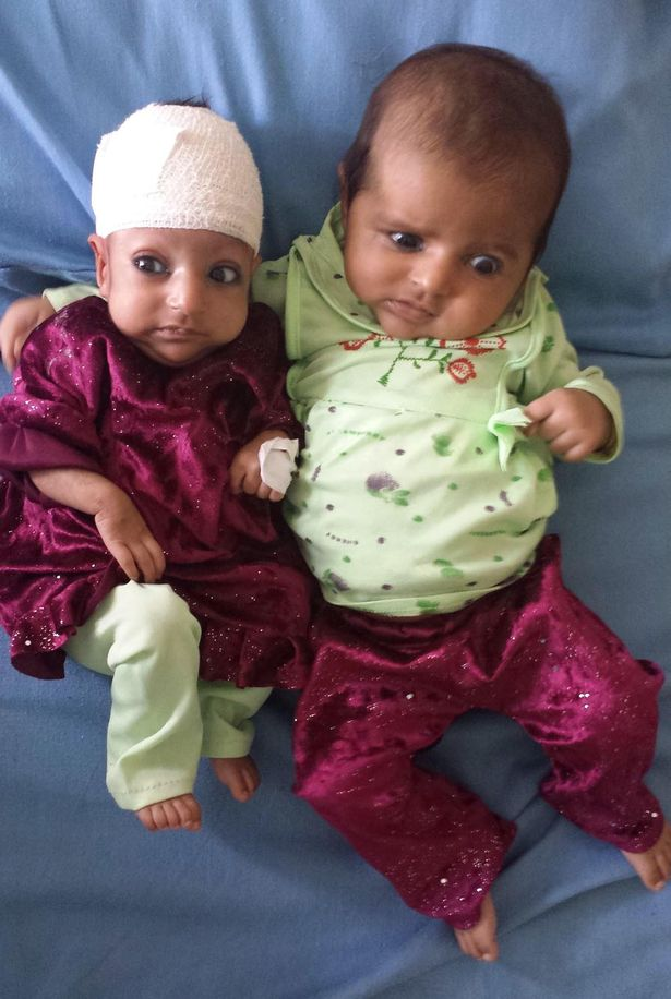 Three month old Asree Gul and her twin sister at a hospital in the eastern Afghanistan city of Jalalabad