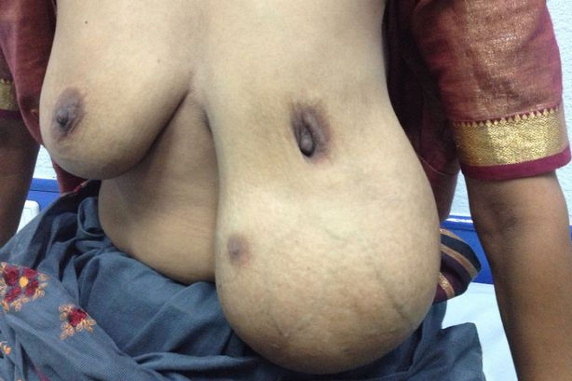 A woman who grew a THIRD breast has had it removed